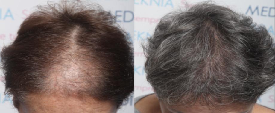 Alopecia androgenetica femenina con clareas en zona frontal central