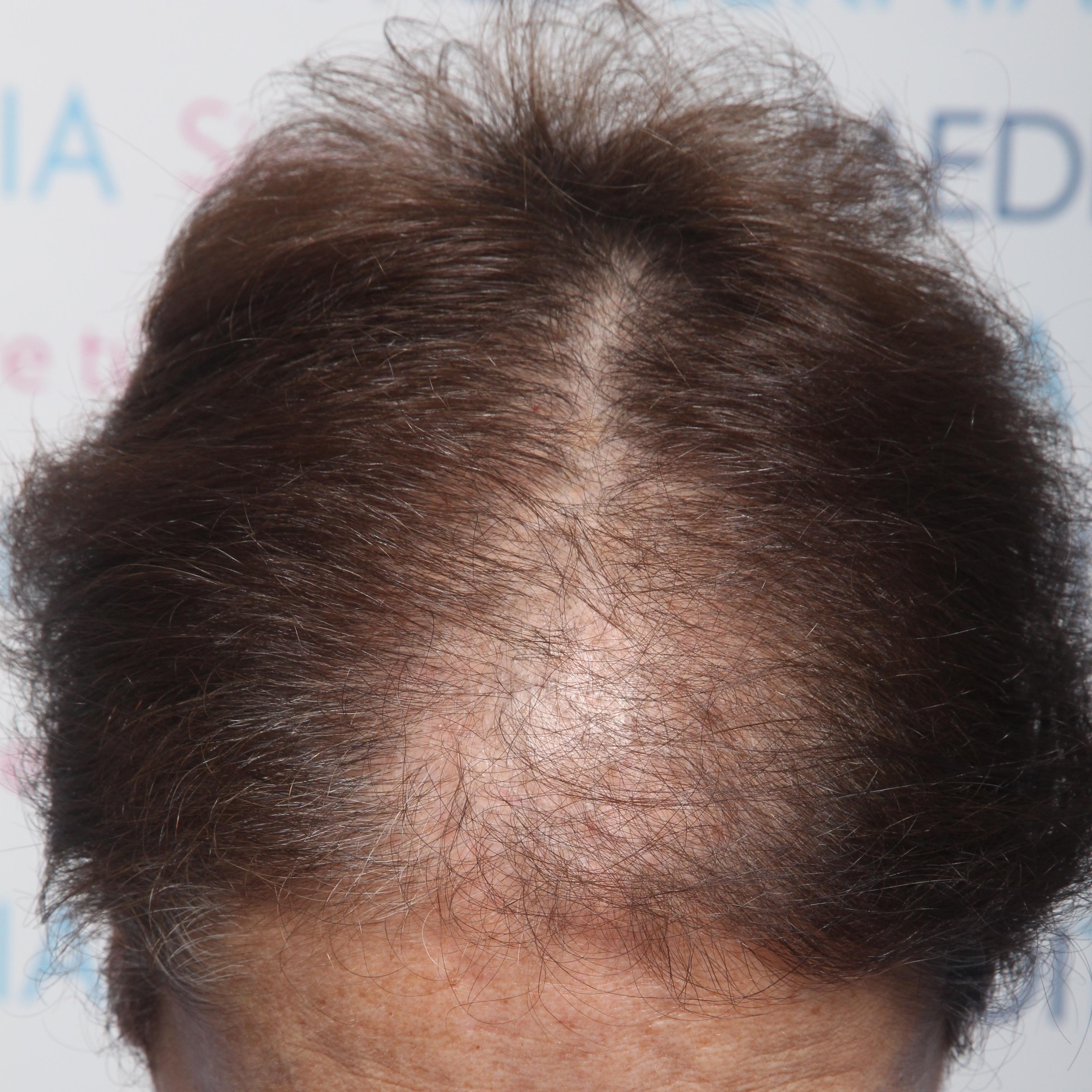 Antes Alopecia androgenetica femenina con clareas en zona frontal central