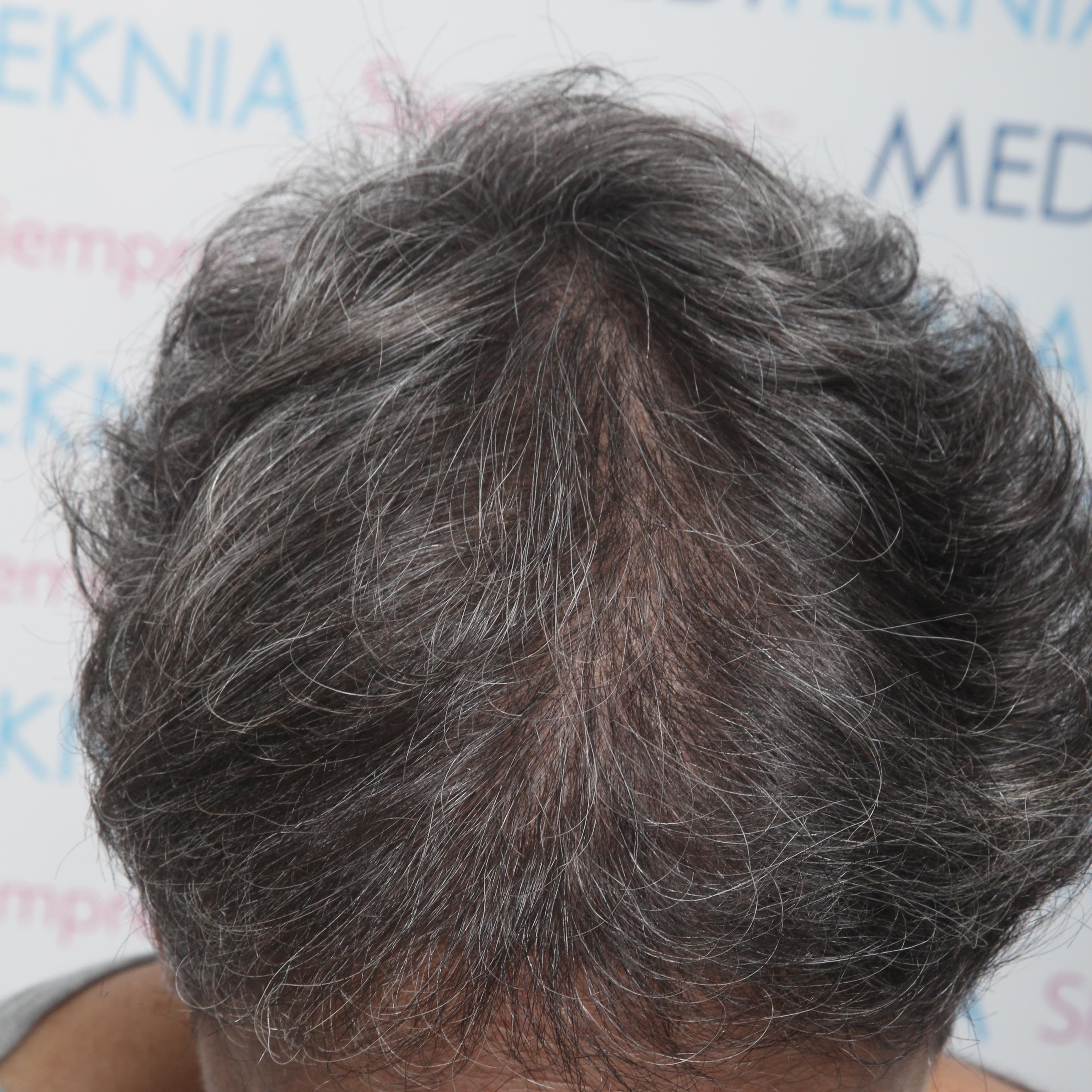 Despues Alopecia androgenetica femenina con clareas en zona frontal central