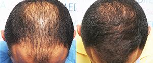 Alopecia Androgenética progresiva con tratamiento médico y trasplante
