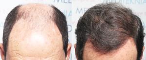 Alopecia androgenética avanzada