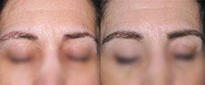 Trasplante de pelo cejas para aumentar su volumen