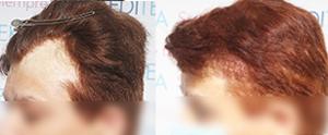 Trasplante en paciente con alopecia por quemadura